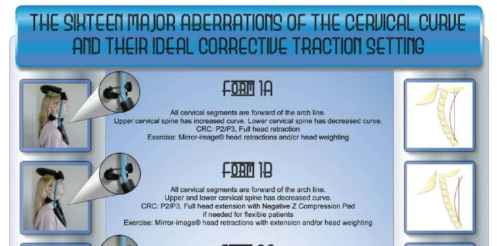 The Sixteen Aberrations of the Cervical Curve and Their Ideal Corrective Traction Setting
